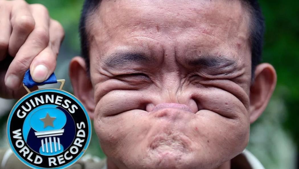 Человек ест свой нос